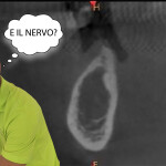 Dove è il nervo