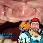 Osteotomia arcata superiroe