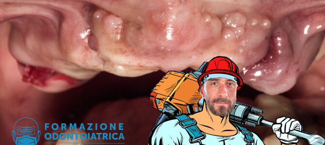 [Video] Come eseguire (in fretta) una copiosa osteotomia in un caso di all-on-4
